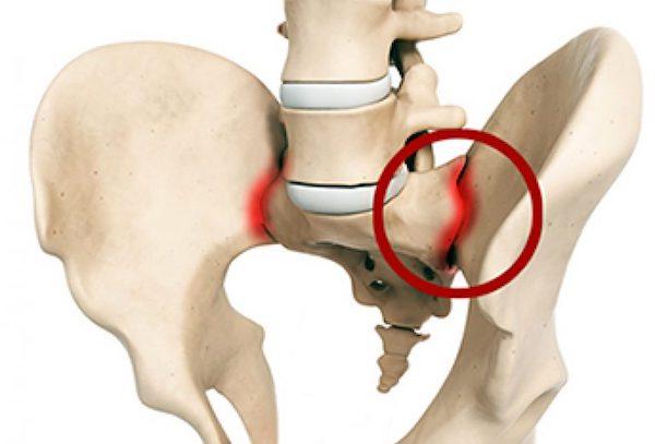 Суставы ломит, артроз как называется болезнь суставов рук и ног