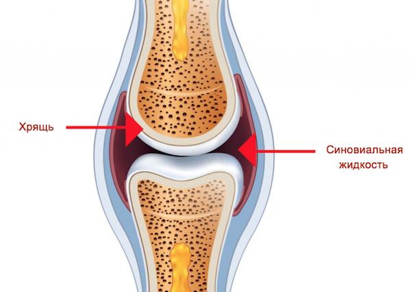 лечение воспаления височной нижнечелюстного сустава